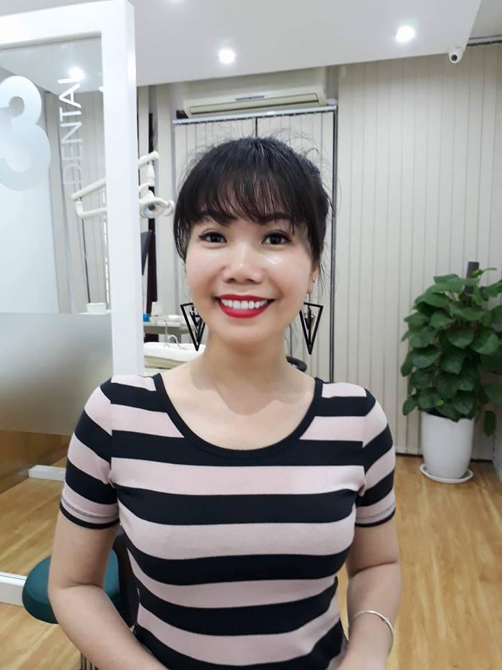 Chị Thủy bọc răng sứ tại Queen Smile