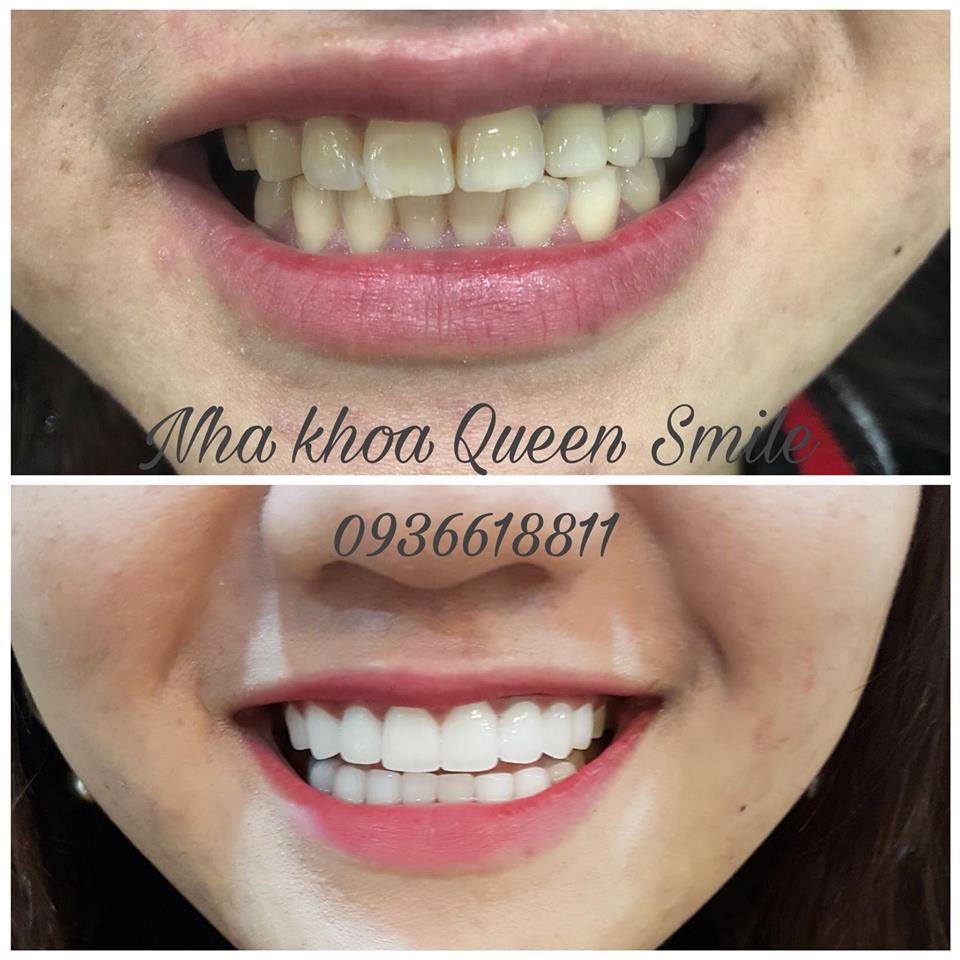 bọc răng sứ uy tín tại hà nội