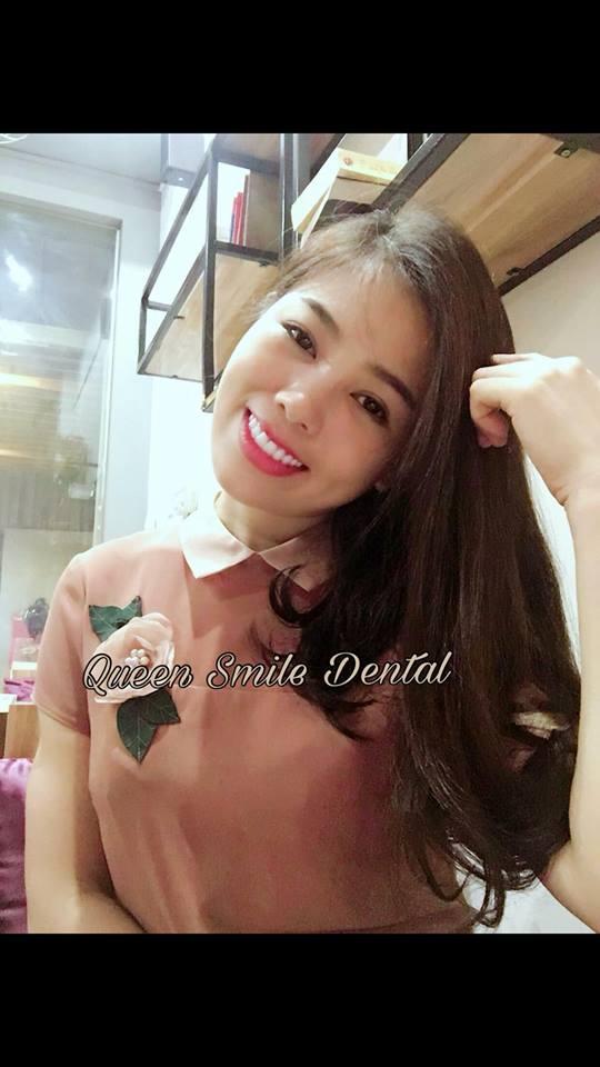 Chị Hương làm răng sứ tại Queen Smile