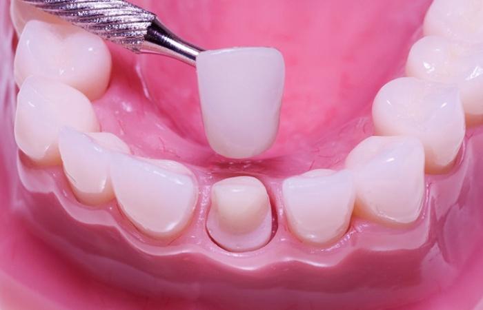 bọc răng sứ chi phí bao nhiều