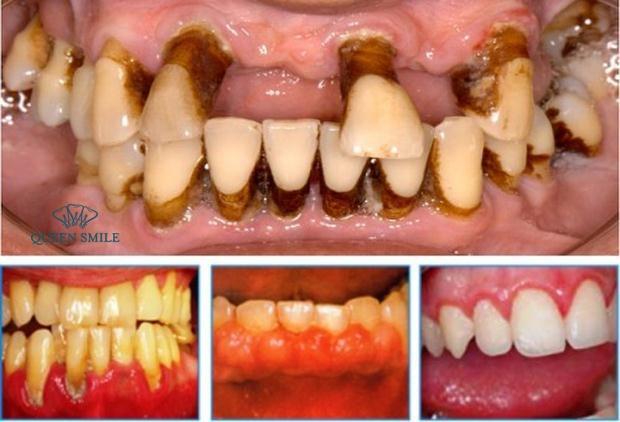 các trường hợp không nên niềng răng