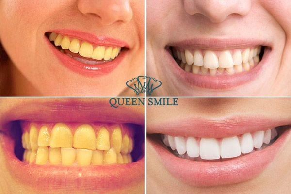Răng ố vàng khiến bạn trông kém tự tin trước mọi người