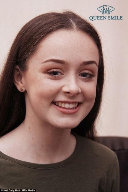 cô gái suýt chết vì niềng răng