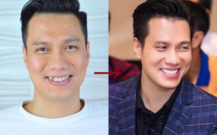 nụ cười rặng ngời của diễn viên Việt Anh