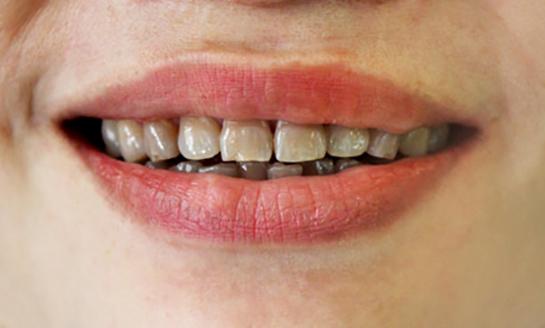 răng ố vàng do nhiễm kháng sinh