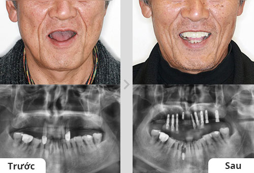 Bác Nam cấy ghép implant