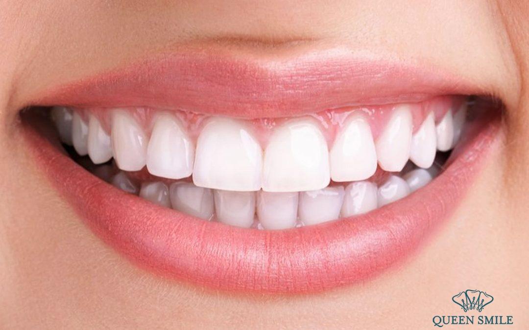 thuốc tẩy trắng răng Opalescence 20 hướng dẫn sử dụng