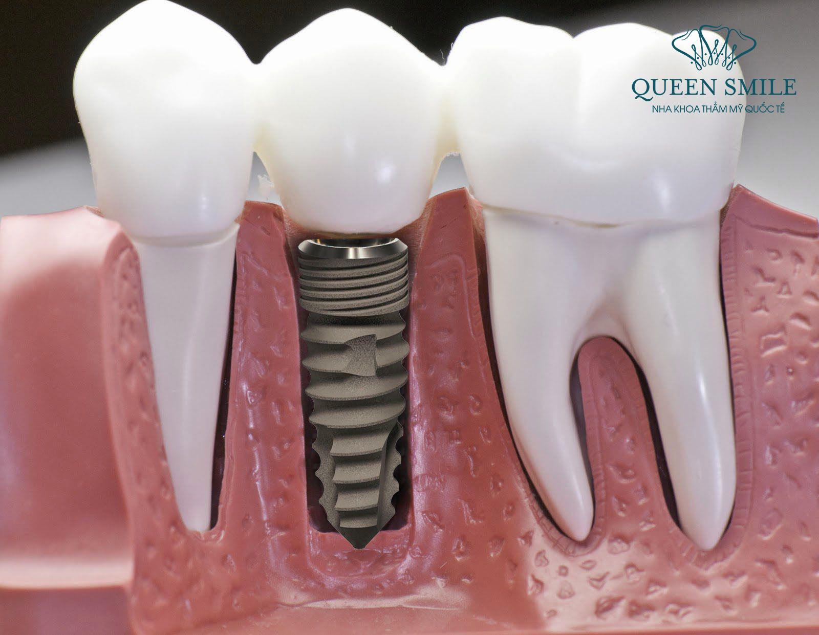 Răng bị gãy vỡ chỉ còn chân răng, ở trường hợp này, bạn nên cấy ghép implant