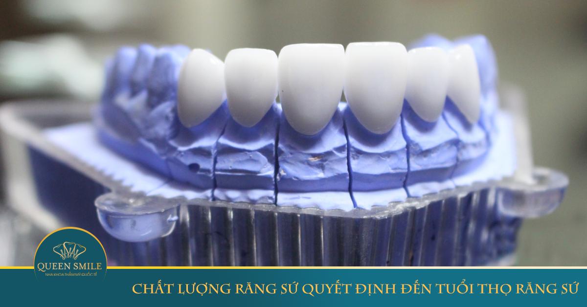 bọc răng sứ ở đâu tốt nhất tại hà nội và chất liệu răng sứ