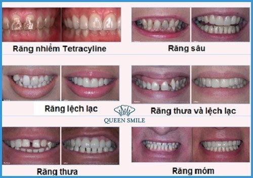bọc răng sứ bao lâu và các trường hợp bọc răng sứ thẩm mỹ