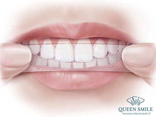 miếng dán trắng răng được sử dụng rộng rãi