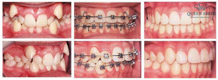 Trước và sau khi niềng răng mắc cài kim loại
