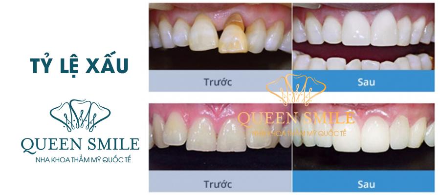 tỷ lệ răng xấu bọc răng sứ