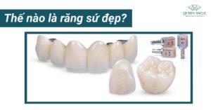 Thế nào là răng sứ đẹp