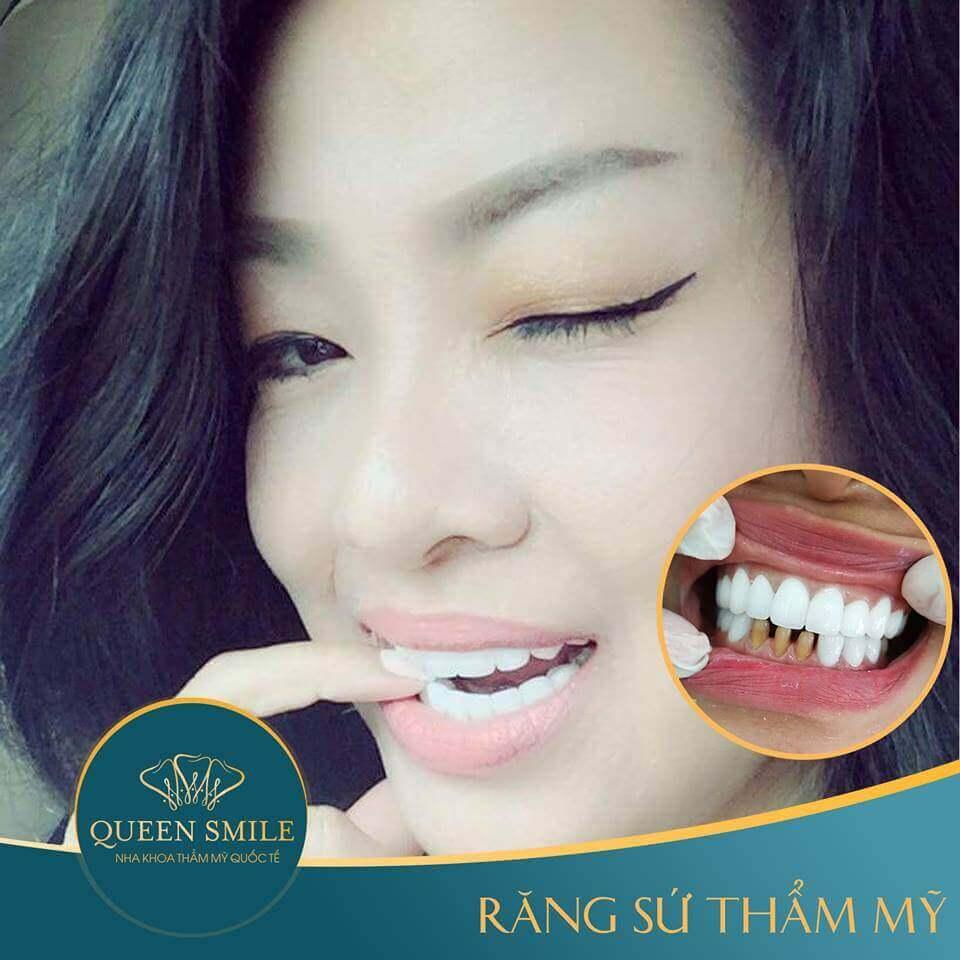 khách hàng răng sứ thẩm mỹ 11
