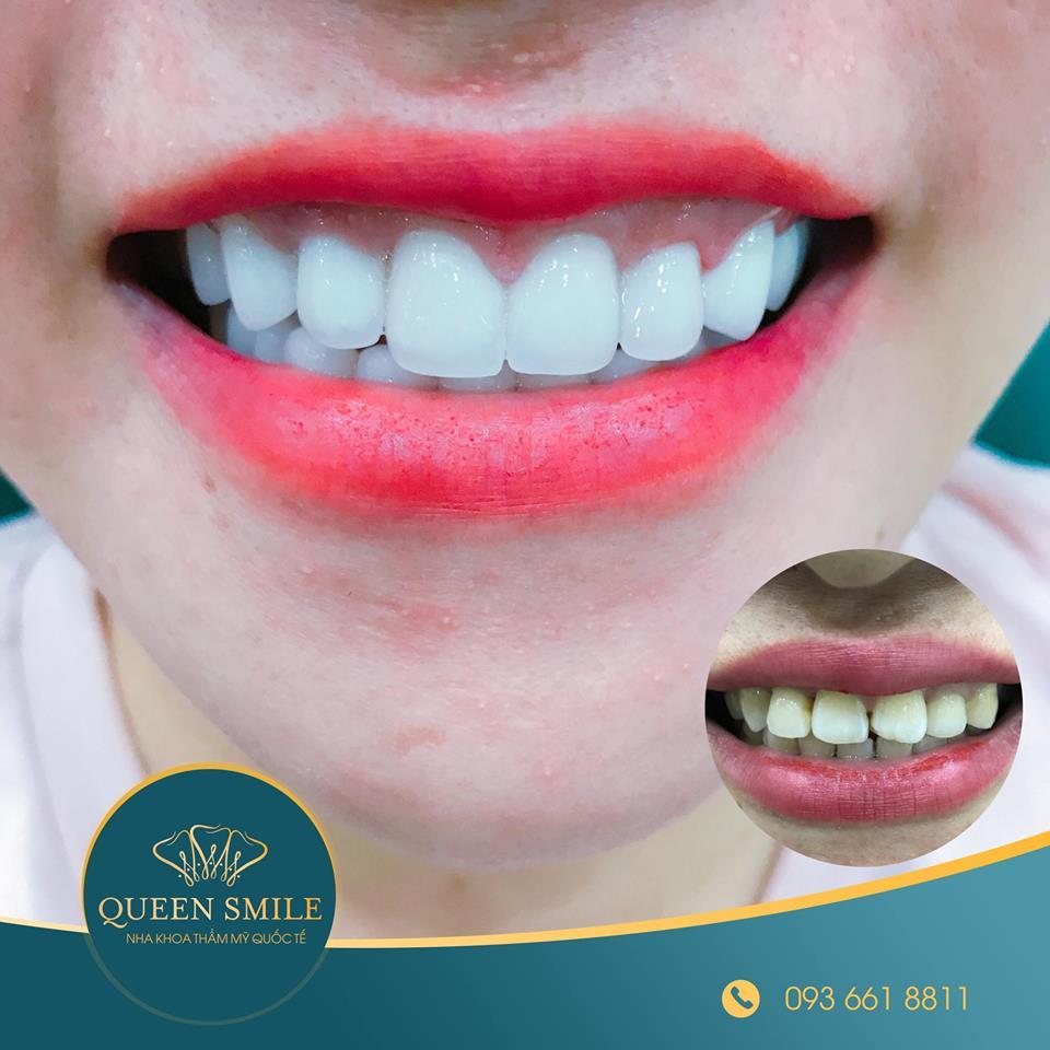 khách hàng răng sứ thẩm mỹ 12