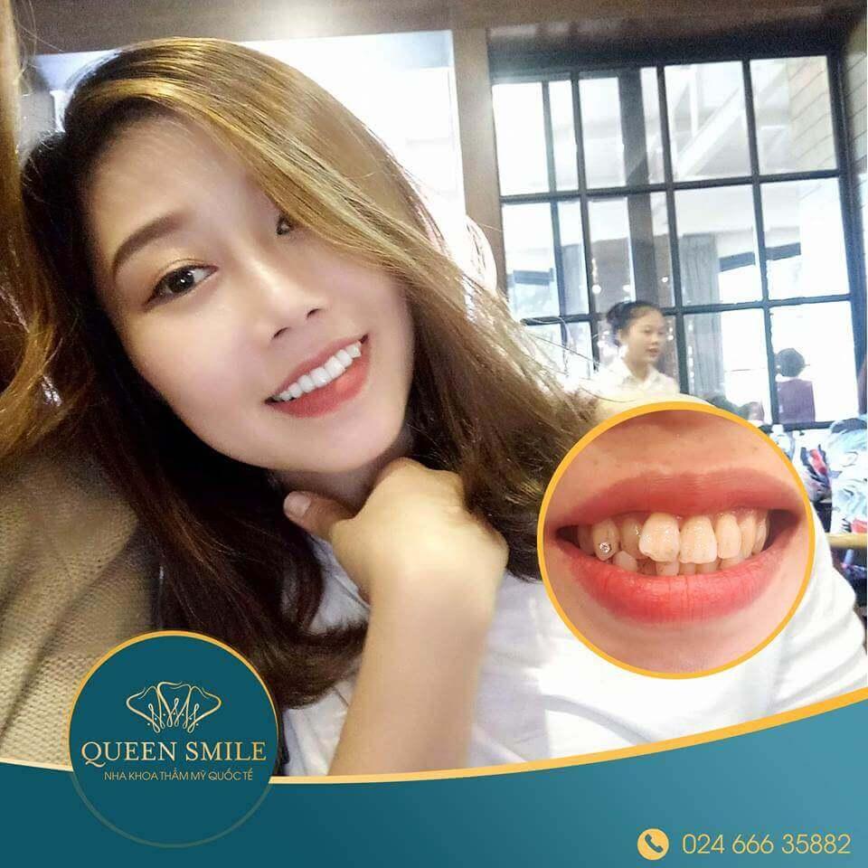 khách hàng răng sứ thẩm mỹ 2