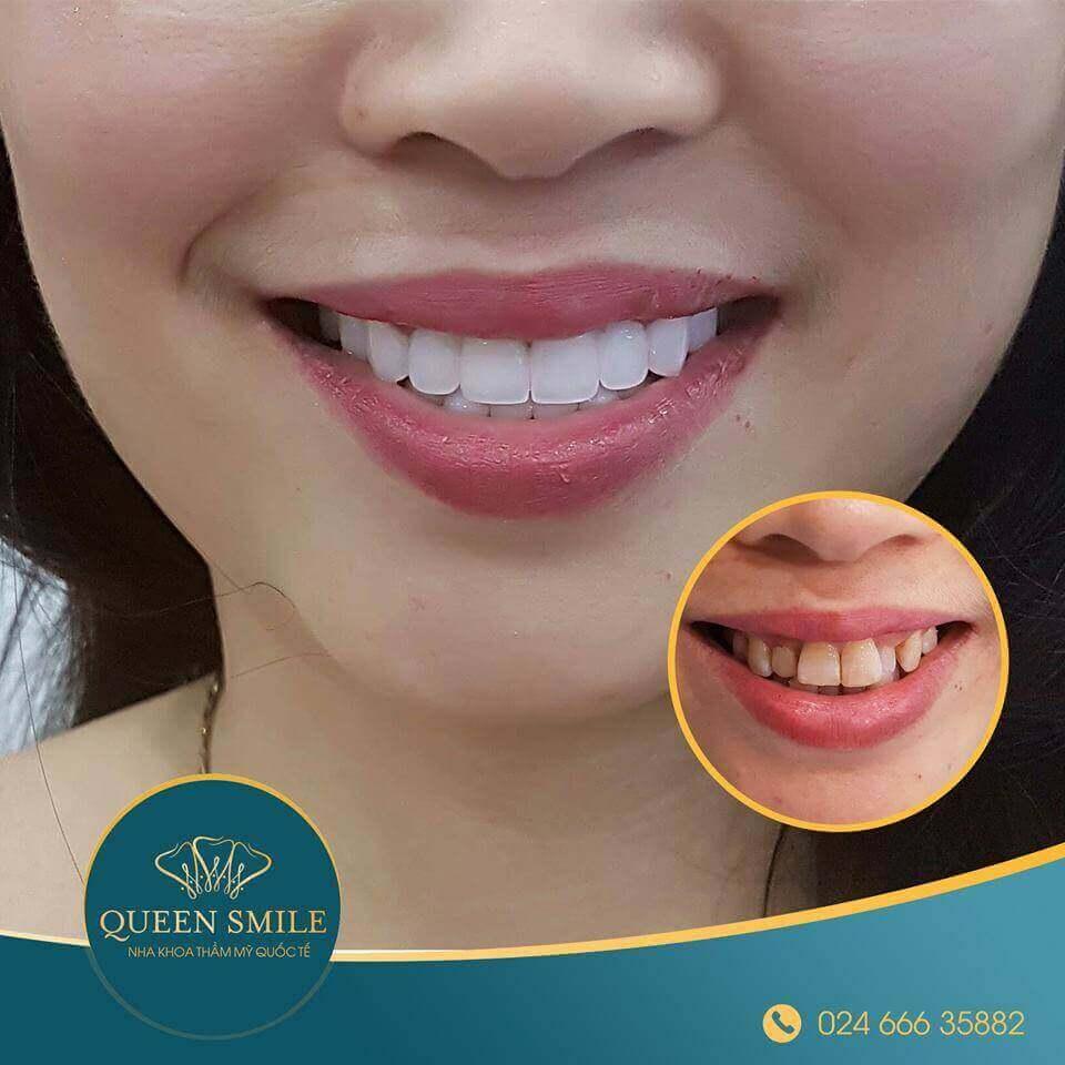 khách hàng răng sứ thẩm mỹ 3