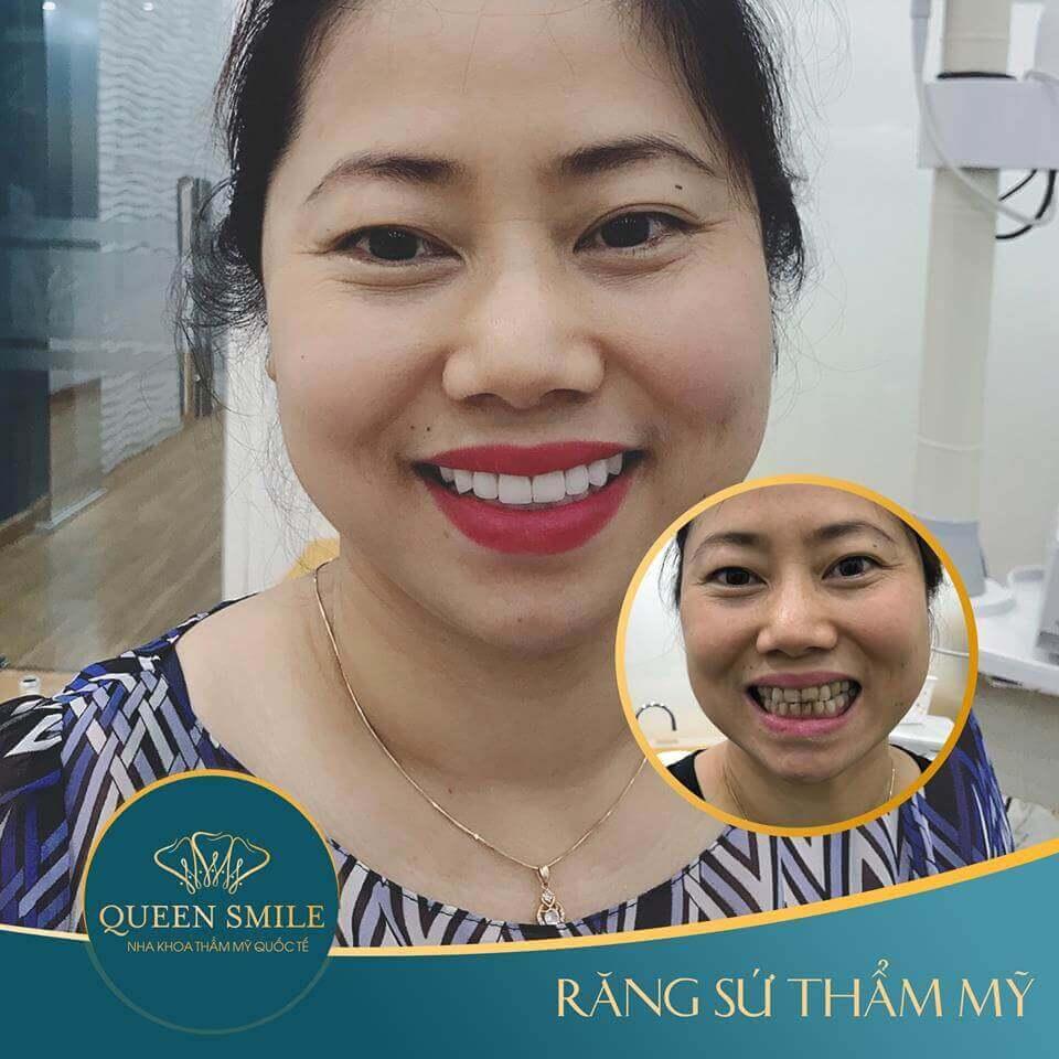 khách hàng răng sứ thẩm mỹ 4
