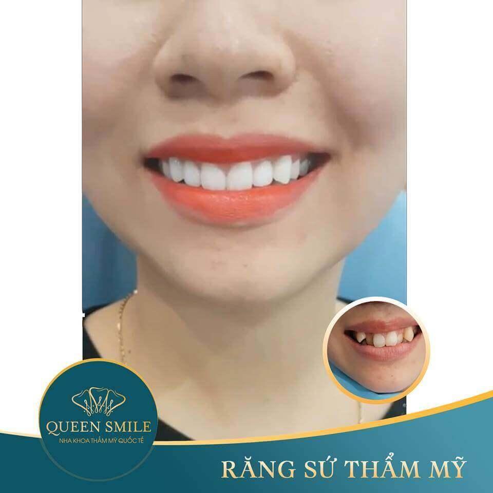 khách hàng răng sứ thẩm mỹ 9